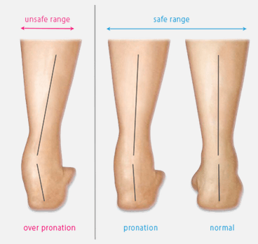 Chronic Foot Pronation